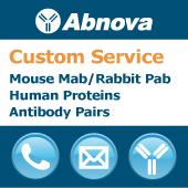 abnova-custom-services.jpg